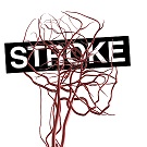Brain_Ateries_Blood_Stroke_ALPHA